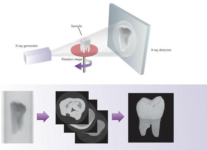 Kuvassa röntgentomografia kuvanmuodostuksen periaate yksinkertaistettuna.